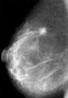 mammografia con tumore